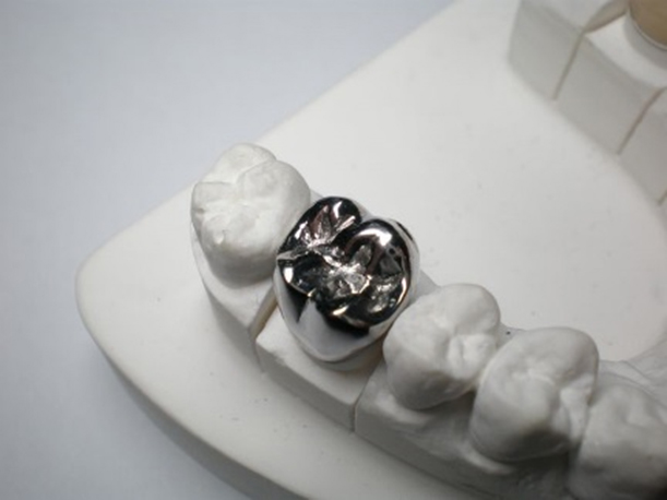 Crowns and Bridges - Oaktree Dental and Implant